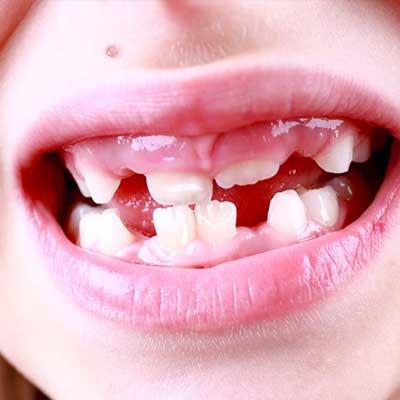 1 3 - همه چیز در مورد دندان شیری