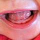 1 80x80 - درد ناشی از دندان درآوردن کودکان