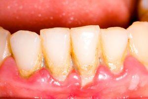 آشنایی با ساختار دندان