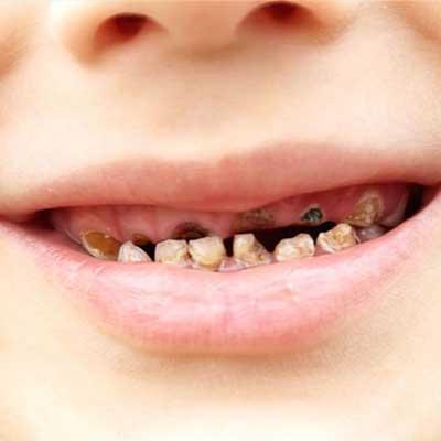 1 - پوسیدگی دندان کودکان