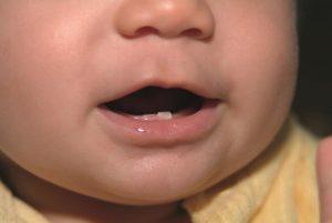 مراقبت از دندان کودک تا دو سالگی