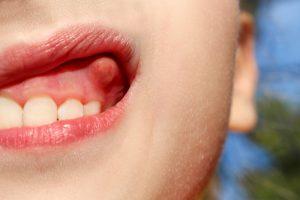 آبسه دندان در کودکان