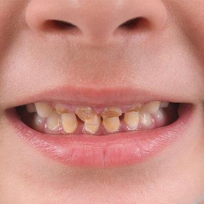 1 3 - تغییر رنگ دندان کودکان