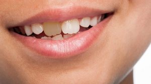 تغییر رنگ دندان کودکان