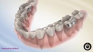 فضا نگهدار دندان کودکان