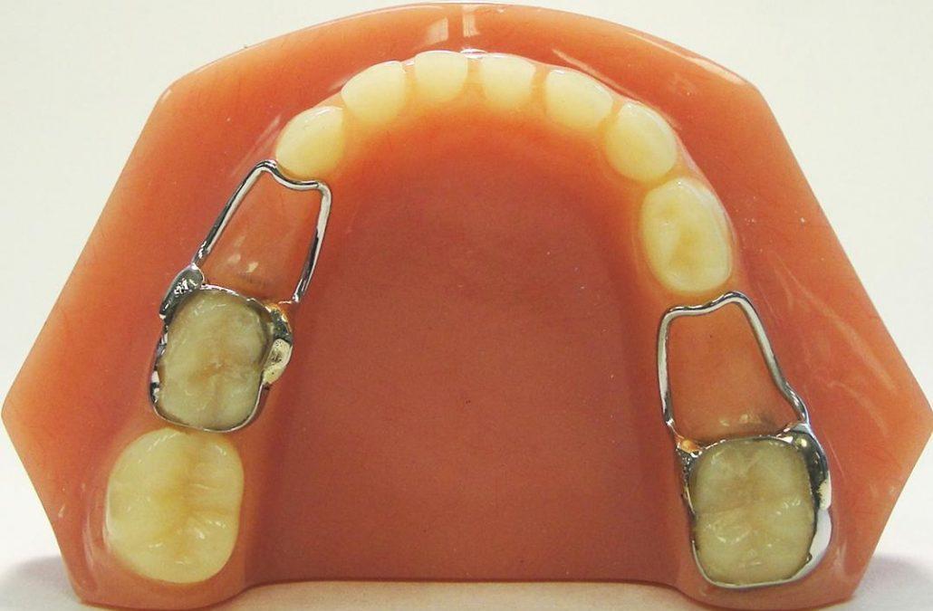 s21 1030x707 1030x675 - فضا نگهدار دندان کودکان