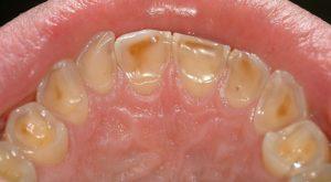 فرسایش دندان کودکان