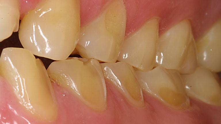 8 2 - فرسایش دندان کودکان
