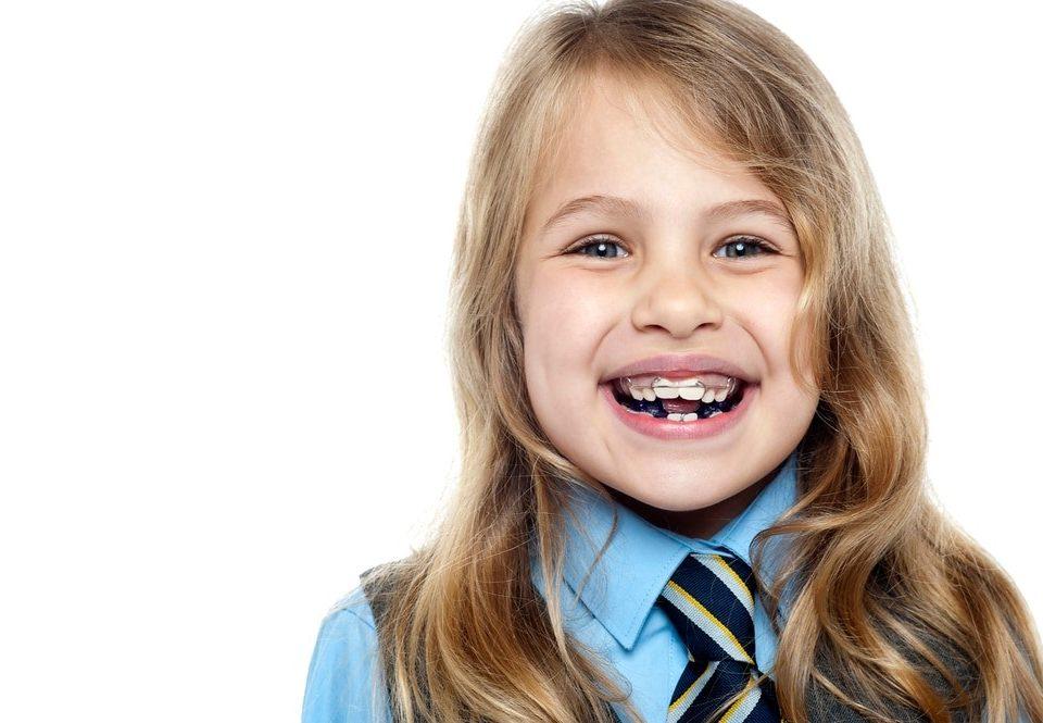 1 960x665 - ارتودنسی در کودکان