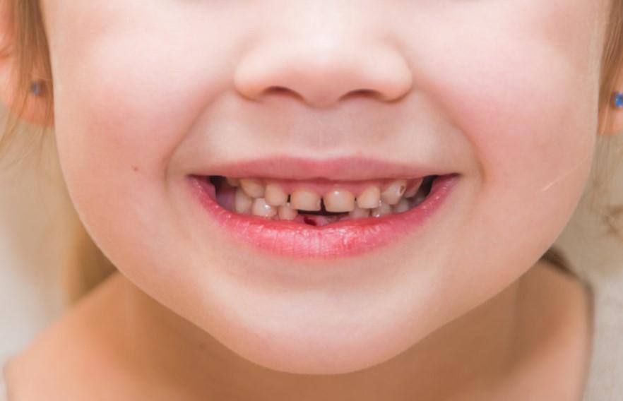 4 - خونریزی لثه در کودکان