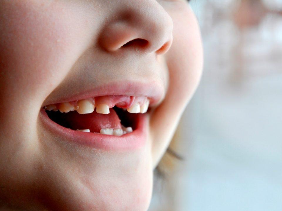 1 960x720 - مشکلات اورژانسی دندانپزشکی کودکان