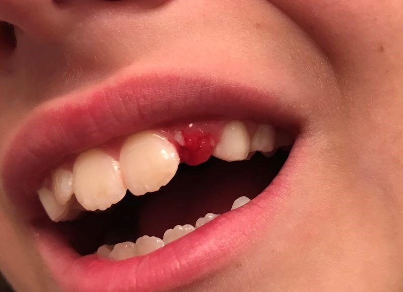 11 - زمان افتادن دندان شیری کودک