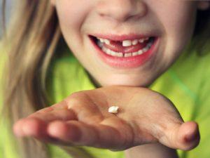 فقدان دندان دائمی کودکان