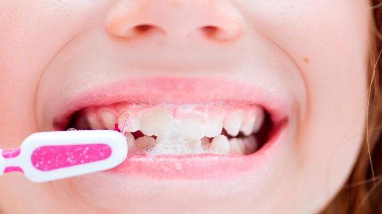 11 - مهم ترین خطرات برای سلامت دهان و دندان کودکان
