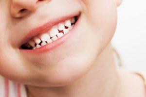 سیاه شدن دندان با قطره آهن