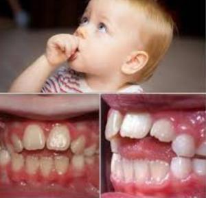 اثرات مکیدن انگشت بر دندان و دهان