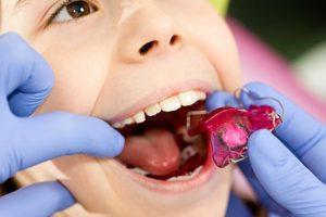 ارتودنسی پیشگیری برای کودکان