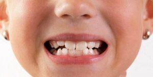 براکسیسم یا دندان قروچه در کودکان