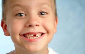 لق شدن و افتادن دندان شیری کودکان