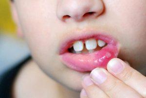 آفت و زخم دهان کودکان