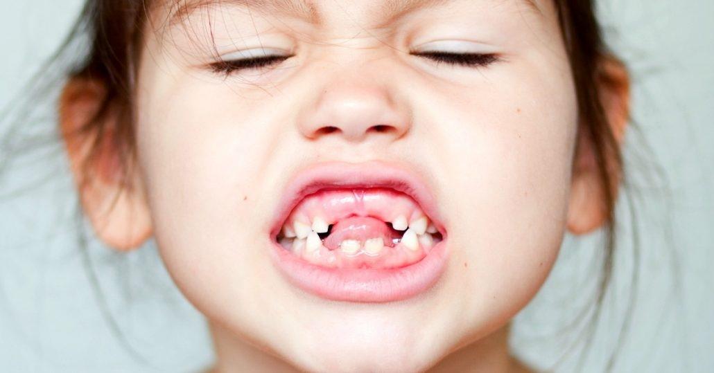 دیر افتادن دندانهای شیری