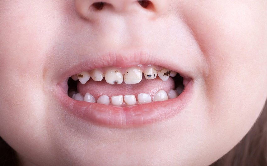 ترمیم دندان شیری کودکان
