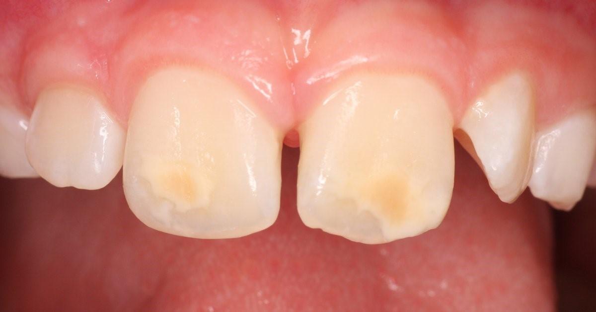 دندان گچی در کودکان