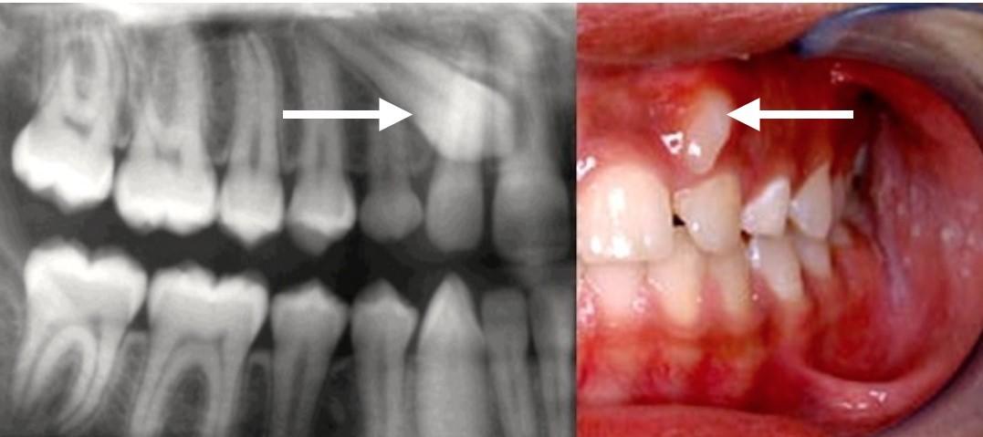دندان اضافی یا دندان نهفته در کودکان